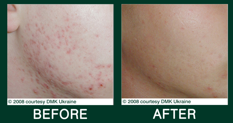 Acne Can Be Cured Dmk Skincare Enzyme Therapy